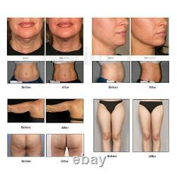 Professional Hifu Ultrasound SMAS Anti Aging Fat Weight Loss Machine 5 Cartridge