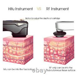 Professional skin tightening face lifting focused ultrasound hifu device salon
