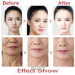 Vmax Hifu Face Lifting Anti-Wrinkle Anti aging Ultrasound Beauty Machine